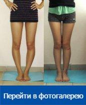 Волгоград пластическая хирургия исправление кривизны ног ж/д больница уфа пластическая хирургия