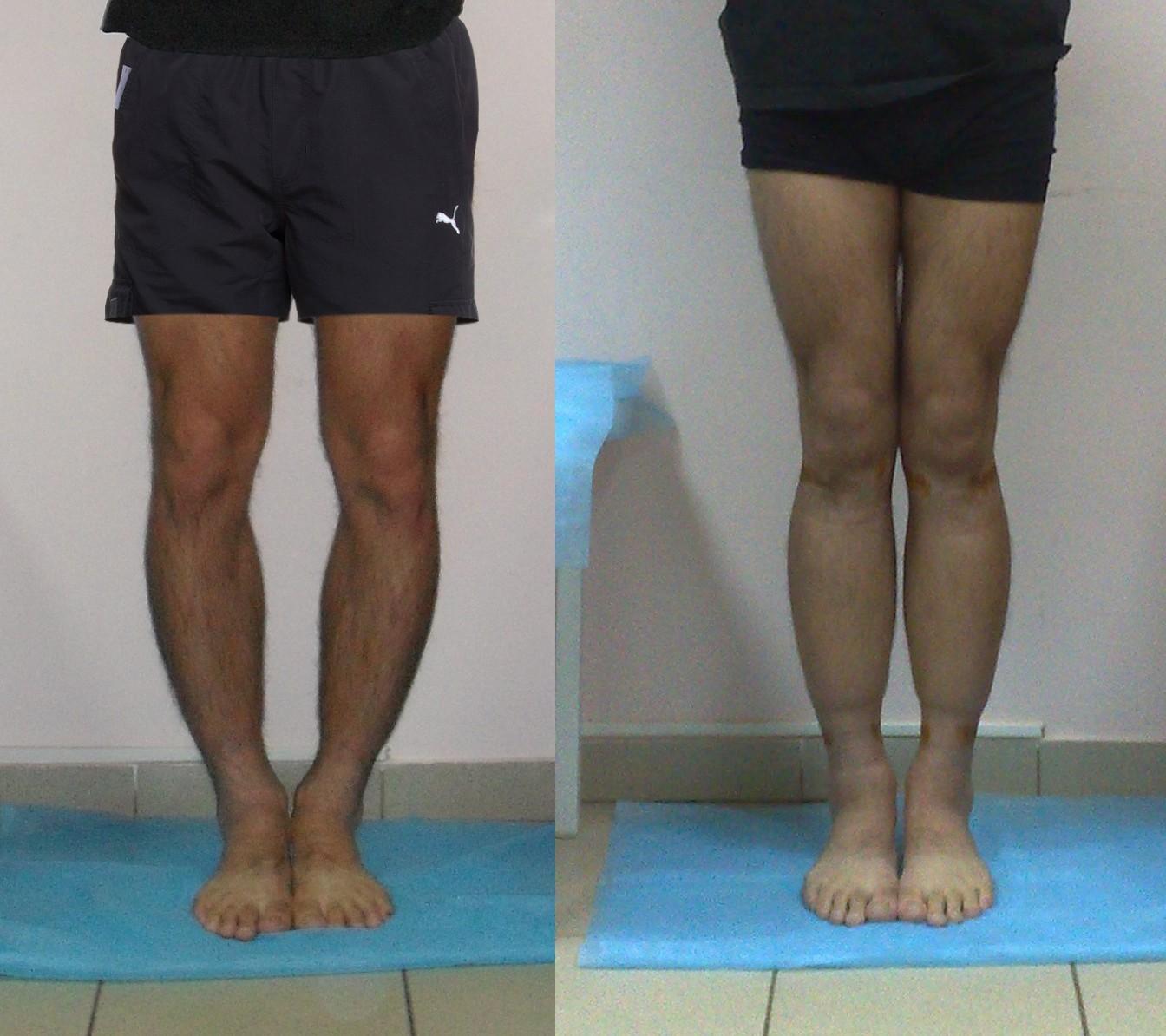 Форма женских ног фото 14 фотография