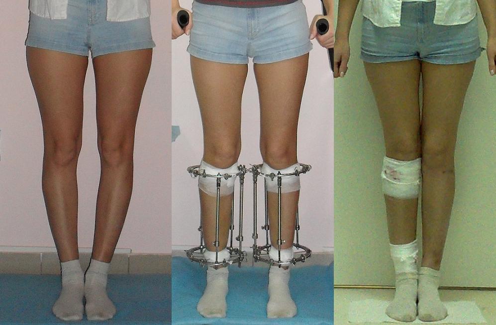Как исправить кривые ноги в домашних условиях у детей