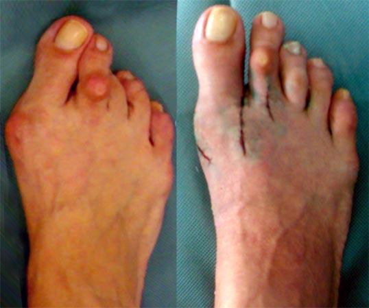 Исправление косточки на ноге операция