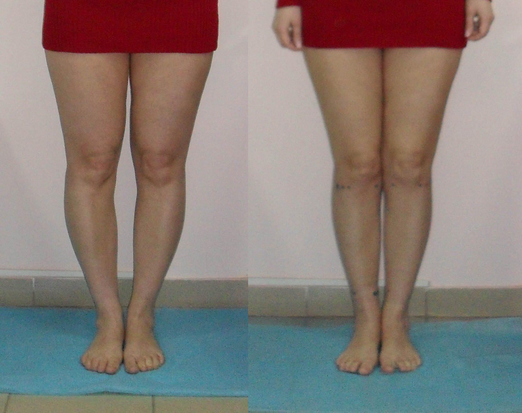 Исправить кривые ноги в домашних условиях