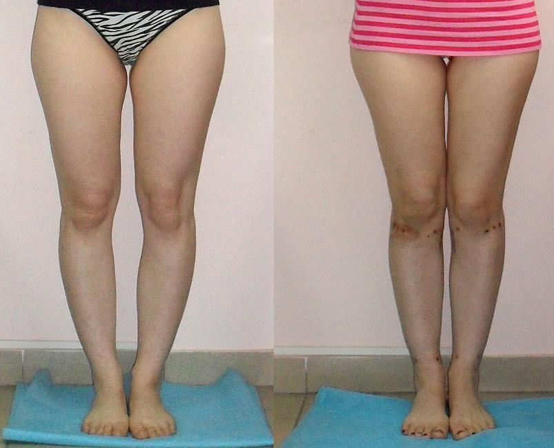 Как сделать нормальные ноги